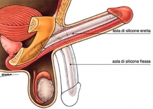 Figura 1: esempio di protesi non idraulica